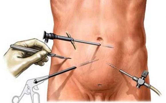 Laparoscopic Keyhole Surgery
